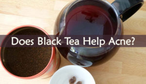 Does Black Tea Help Acne