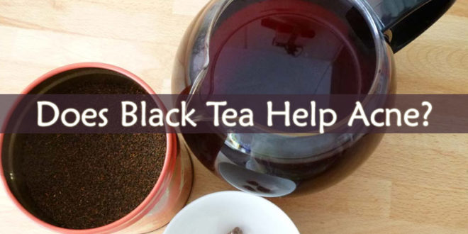 Does Black Tea Help Acne