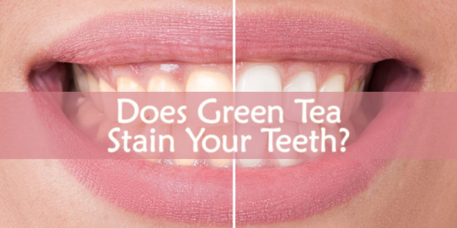 Does Green Tea Stain Your Teeth