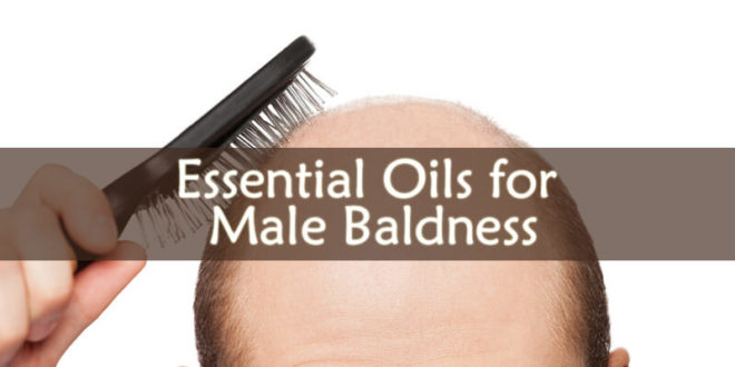 Essential Oils for Male Baldness