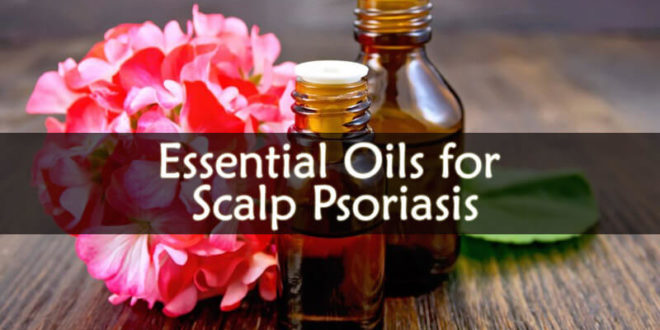 Essential Oils for Scalp Psoriasis