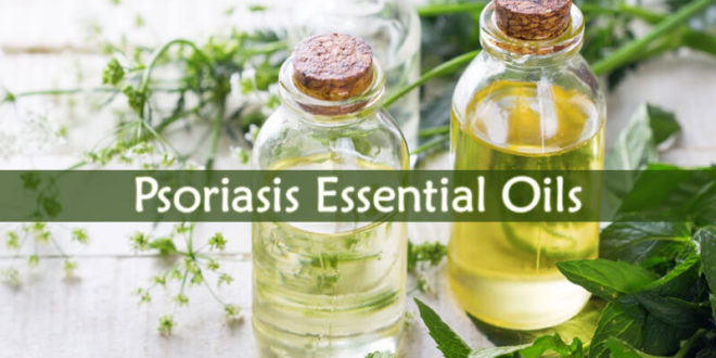 Psoriasis Essential Oils