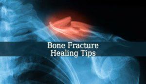 Bone Fracture Healing Tips
