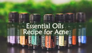 Essential Oils Recipe for Acne