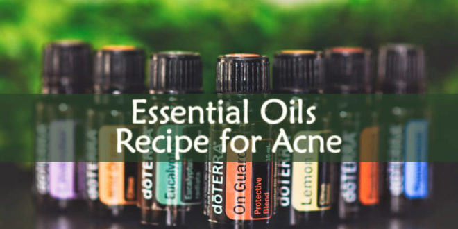 Essential Oils Recipe for Acne