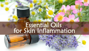 Essential Oils for Skin Inflammation