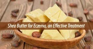 shea butter for eczema