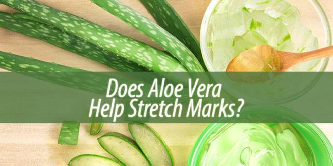 Does Aloe Vera Help Stretch Marks