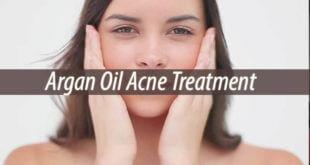 Argan Oil Acne Treatment