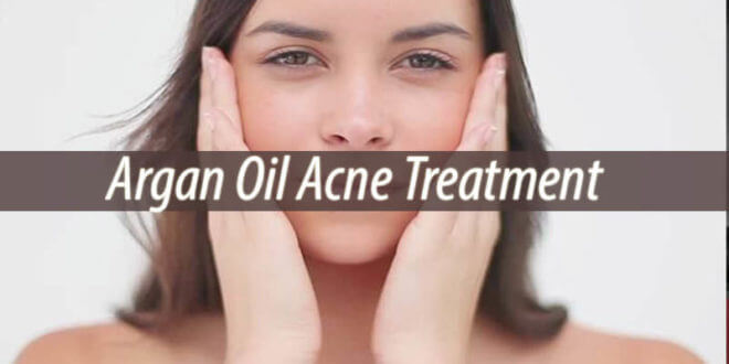 Argan Oil Acne Treatment