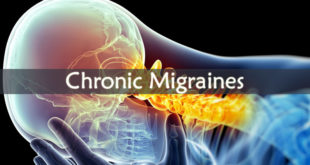 Chronic Migraines