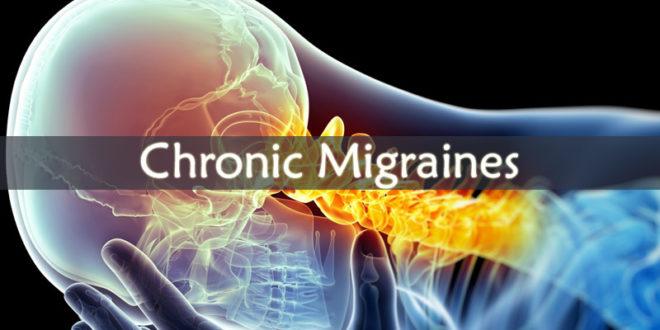 Chronic Migraines