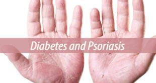 Diabetes and Psoriasis
