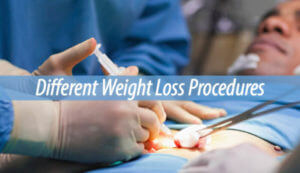 Different Weight Loss Procedures