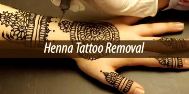 Henna Tattoo Removal