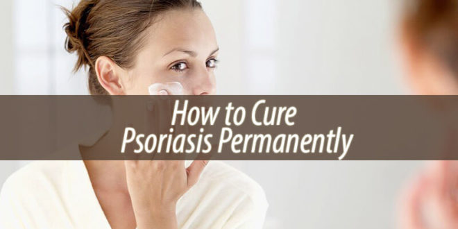 How to Cure Psoriasis Permanently