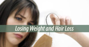 Losing Weight and Hair Loss