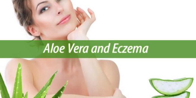 aloe vera and eczema