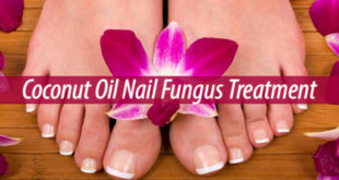 coconut oil nail fungus