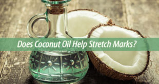does coconut oil help stretch marks