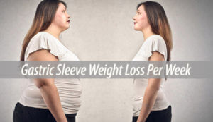 gastric sleeve weight loss per week