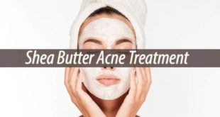 shea butter acne