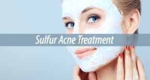 sulfur acne treatment