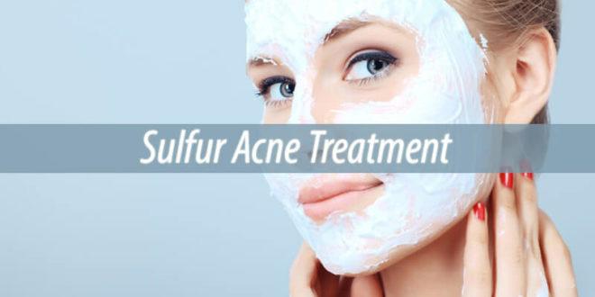 sulfur acne treatment