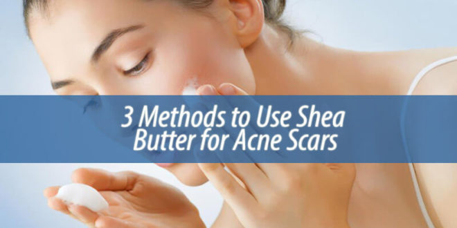 3 Methods to Use Shea Butter for Acne Scars