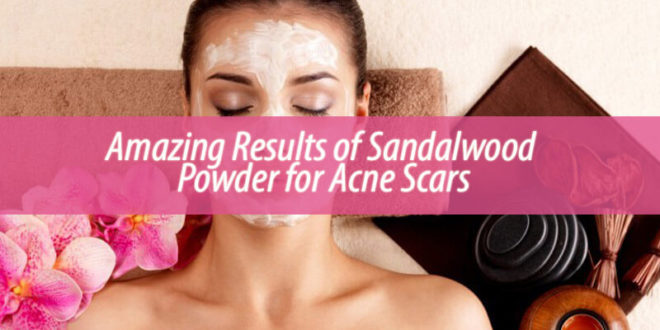 Amazing Results of Sandalwood Powder for Acne Scars