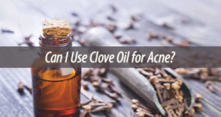 Can I Use Clove Oil for Acne