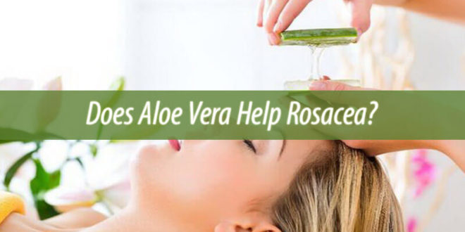 Does Aloe Vera Help Rosacea