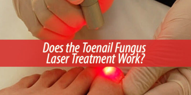 Does the Toenail Fungus Laser Treatment Work