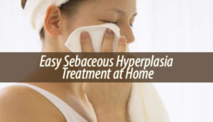 Easy Sebaceous Hyperplasia Treatment at Home