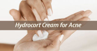 Hydrocort Cream for Acne